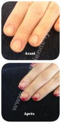 ongle en gel extension de l ongle en gel au chablon et deco french rouge