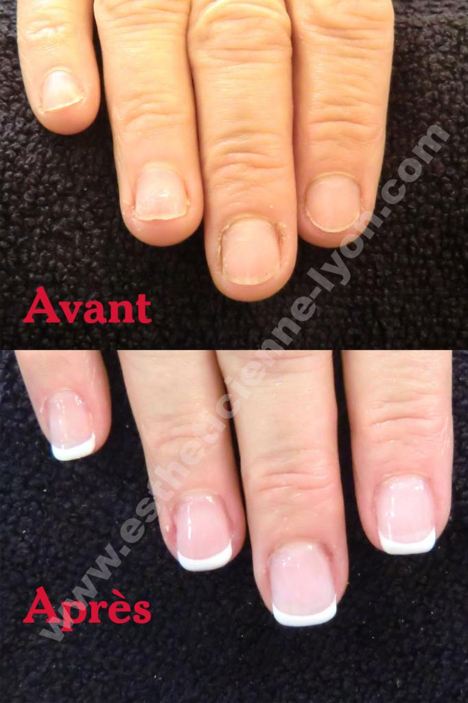 Ordinary French Sur Ongle Court 7 Ongle Gel Avant Apres Sur Ongle  Cours Extension