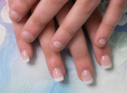 avant apres sur ongles ronges construction en gel au chablon