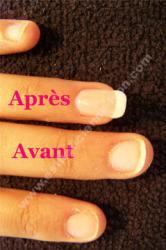 avant apres extension ongle au chablon et gel